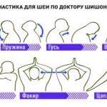 Гимнастика для шеи без музыки – лечение гипертонии