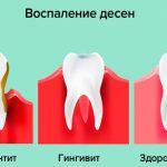 Металлический привкус во рту у женщин — его причины и симптомом каких заболеваний может быть