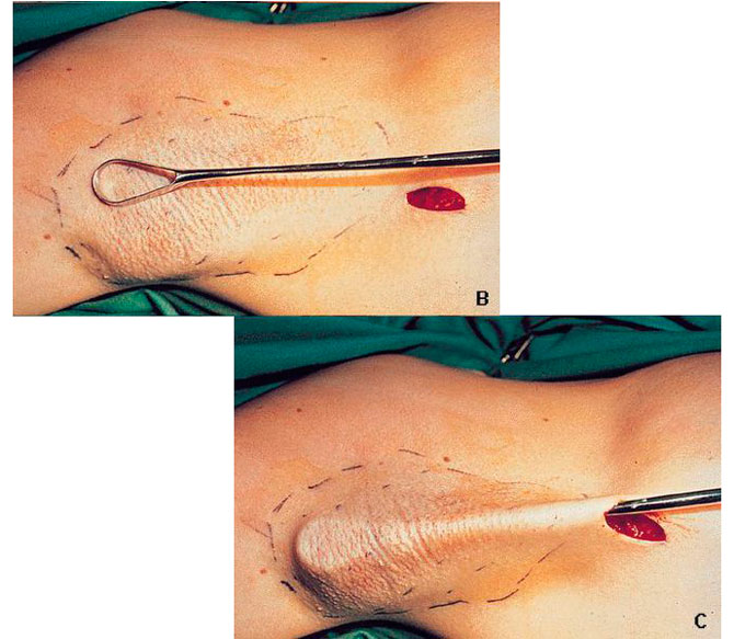 Хирургические методы