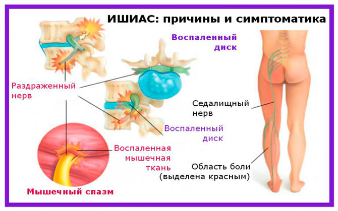 Симптомы ишиаса