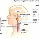 Сосудорасширяющие препараты для головного мозга — когда следует принимать
