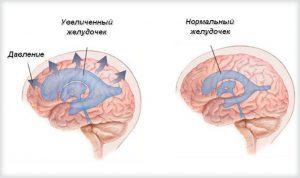 Скопление жидкости в головном мозге