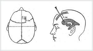 Пункция для измерения ВЧД