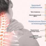 Основные методы реабилитации при остеохондрозе