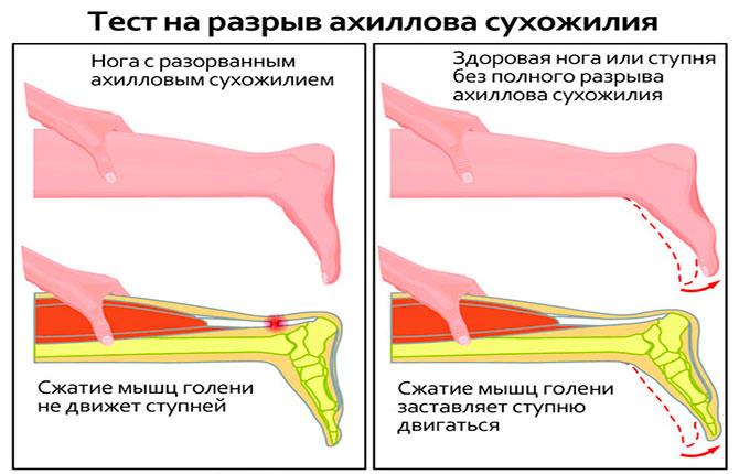 Диагностика разрыва ахиллова сухожилия