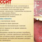 Причины появления язвенного глоссита — эффективные методы лечения