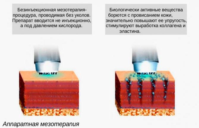 Аппаратная мезотерапия