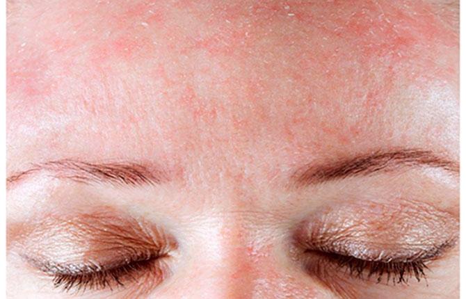 Сухость кожи и шелушение