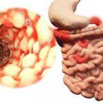 Основные причины появления хронического энтерита — чем грозить не лечение болезни