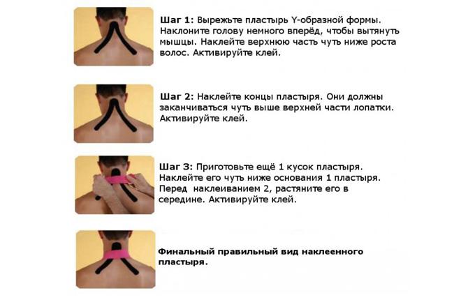 Тейпирование при растяжении мышц шеи