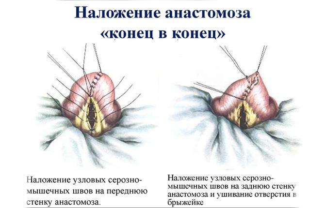 Операция с анастомозом «конец в конец»