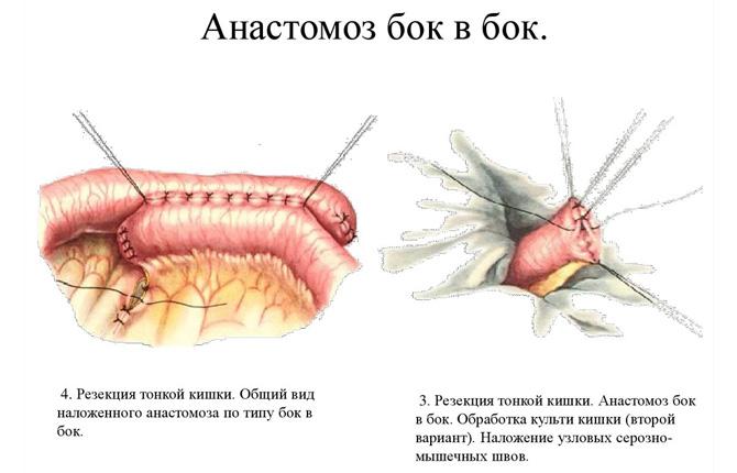 Резекция тонкой кишки с анастомозом «бок в бок»