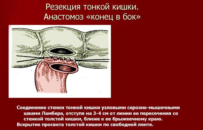 Резекция с анастомозом «бок в конец»