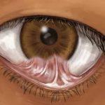Причины развития симблефарона глаз — эффективные методы лечения