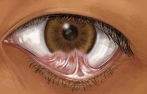 Симблефарон глаза