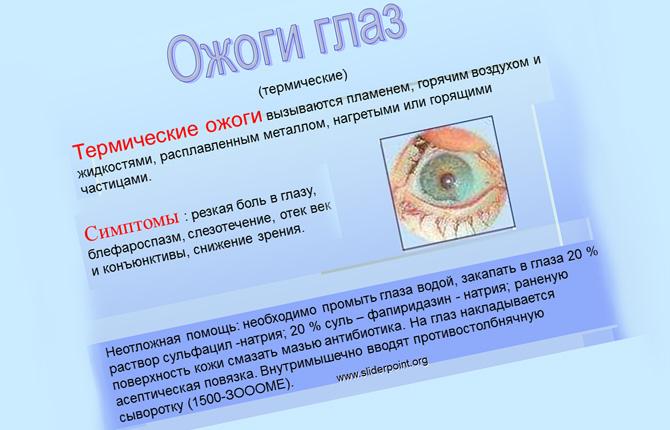 Ожоги глаз