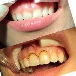 Роль гингивэктомии в стоматологии — быстрое решения проблемы пародонтита