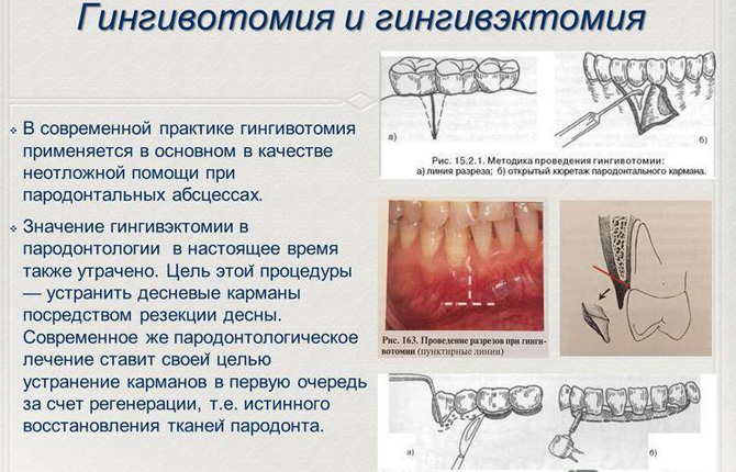 Гингивэктомия от гингивотомия