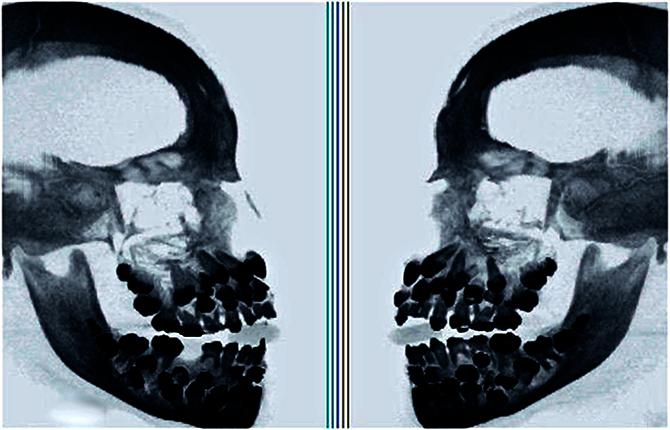 «Акульи» зубы на рентгене