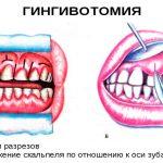 Гингивотомия в стоматологии: показания и противопоказания к процедуре