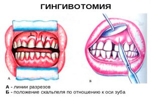Гингивотомия