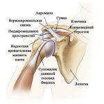 Как лечить хондроз плечевого сустава — советы специалистов