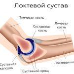 Основные причины воспаления локтевого сустава — эффективные методы лечения