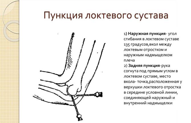 Пункция локтевого сустава