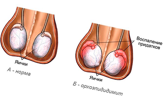 Яички с орхоэпидидимитом