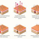 Особенности диодной лазерной эпиляции — кому показана процедура