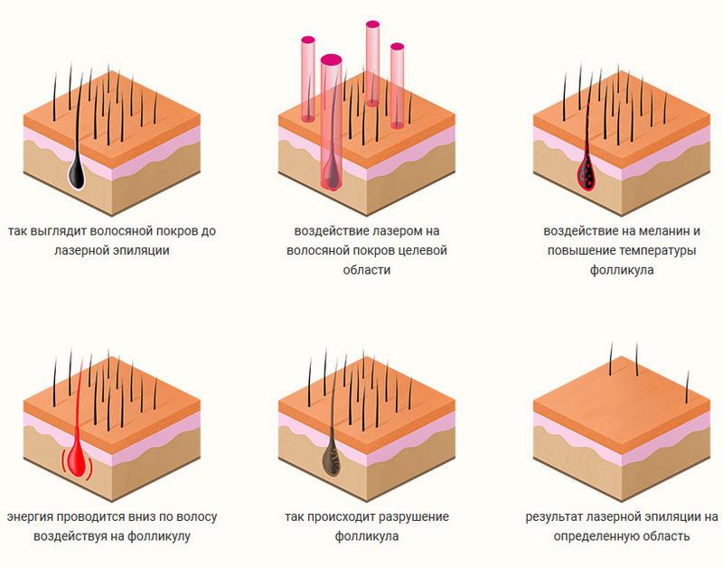Лазерная эпиляция диодным лазером