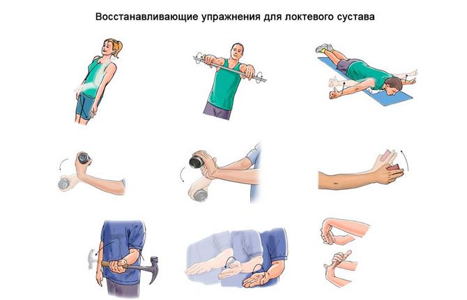 Упражнения для восстановления после травм локтевого сустава