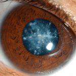 Почему происходит помутнение хрусталика глаза — как бороться с заболеванием
