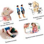 Что вызывает боль в коленях у детей — эффективные методы лечения