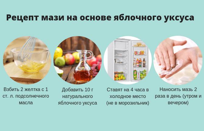 Рецепт мази на основе яблочного уксуса