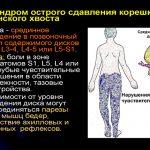 Причины возникновения синдрома конского хвоста — чем опасен для здоровья