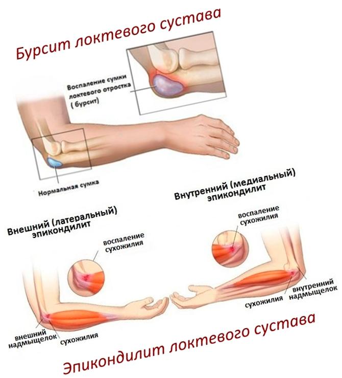 Бурсит и эпикондилит локтевого сустава