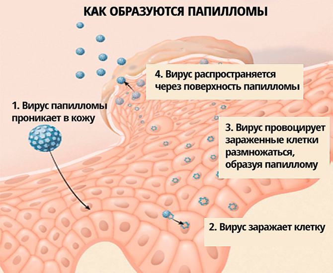 Как образуются папилломы