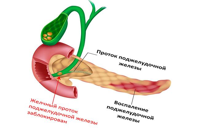 Проток поджелудочной железы