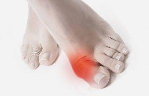 Боль в суставе большого пальца на ноге