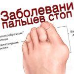 Причины боли в большом пальце на ноге — эффективные методы лечения
