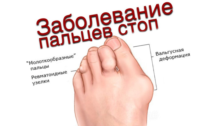 Артрит большого пальца на ноге