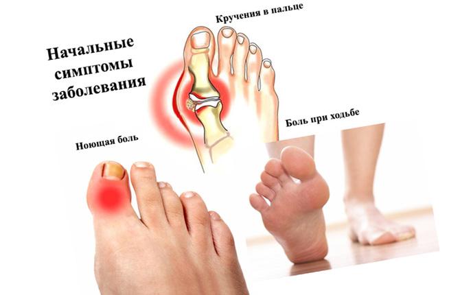 Артроз большого пальца на ноге