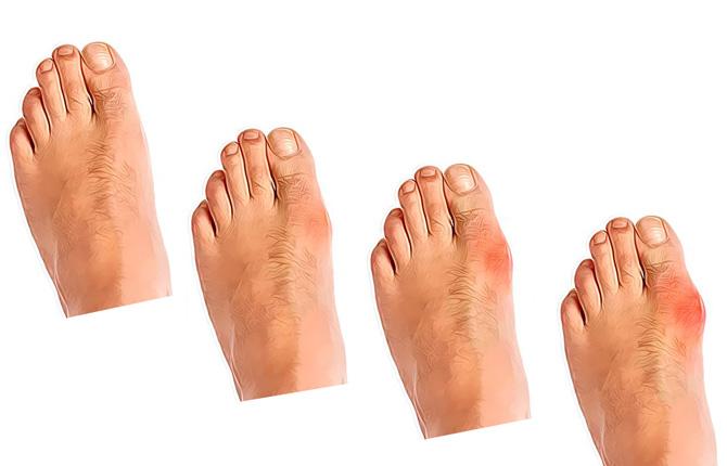Подагра большого пальца на ноге