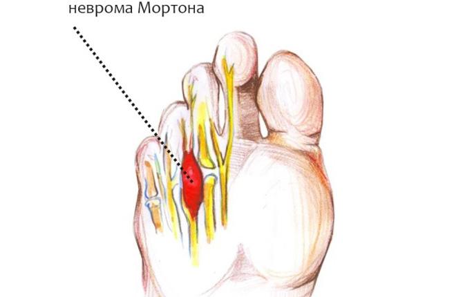 Неврома Мортона большого пальца на ноге