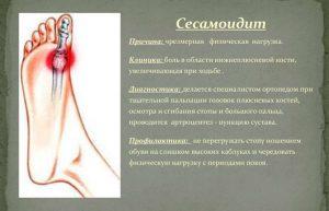 Сесамоидит большого пальца на ноге