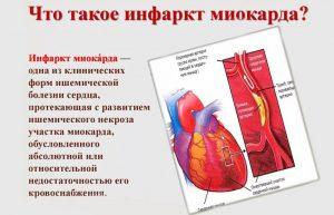 Инфаркт миокарда что это