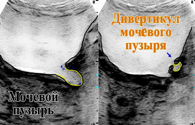 Дивертикул мочевого пузыря диагностика