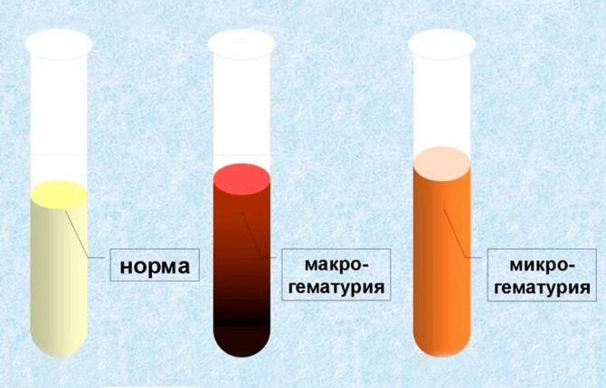 Макро и микрогематурия