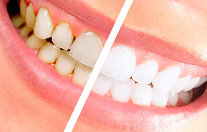 До и после проведения профессиональной гигиены в стоматологии